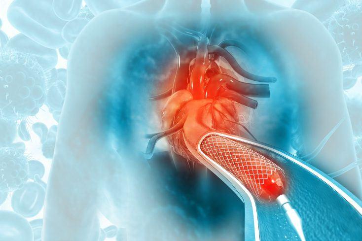 Stent,Angioplasty,On,Scientific,Background.,3d,Illustration